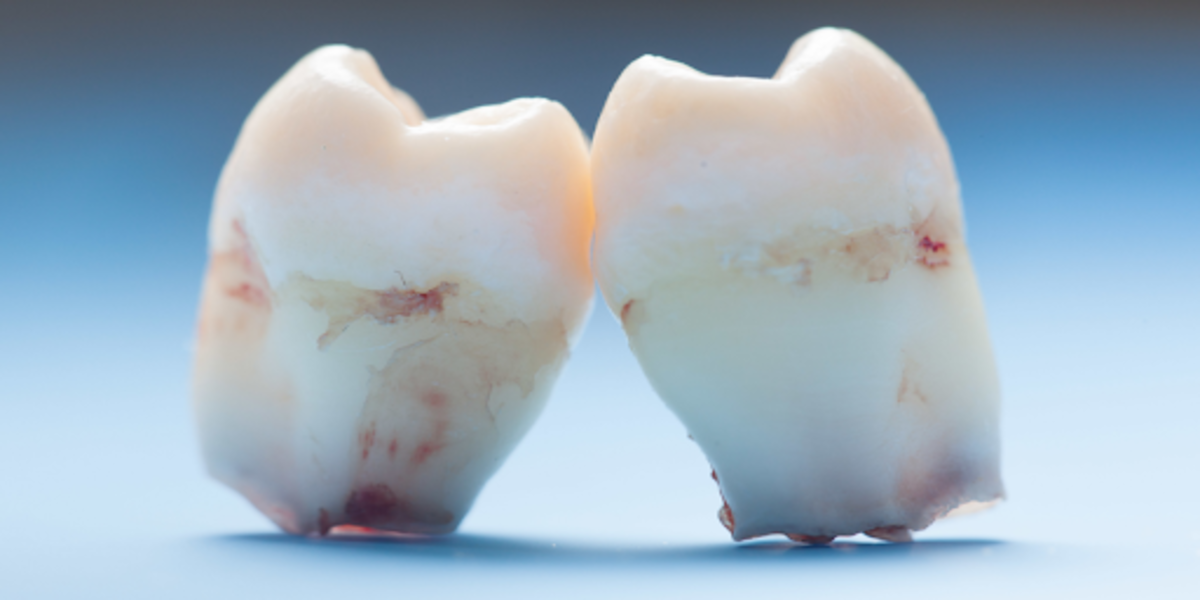 More Babies Are Now Born Without Wisdom Teeth, Study Finds