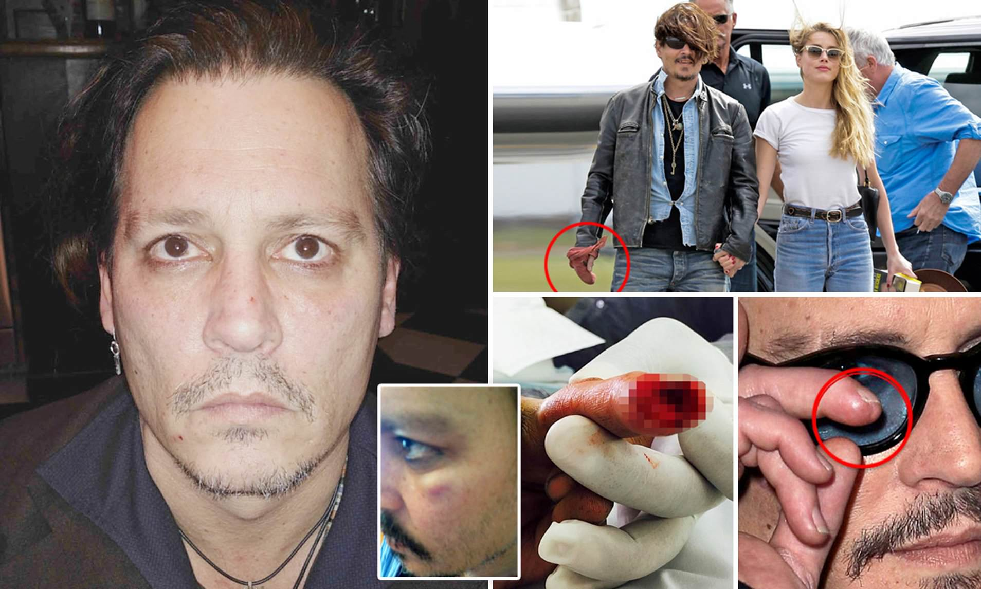 Johnny Depp was brutally beaten by his ex-wife