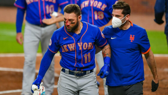 MLB player Kevin Pillar is hit in the face by a 94 MPH fastball