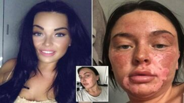 Woman suffers burns after her attempt to poach eggs goes wrong