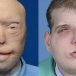 Man who underwent world's most extensive face transplant operation reveals how it has changed his life
