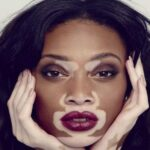 Vitiligo is a skin disease that causes the formation of white spots