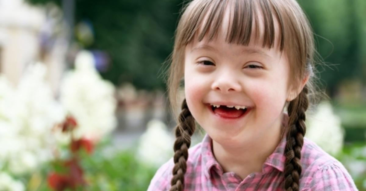 Down syndrome: what it is, causes, diagnosis and more
