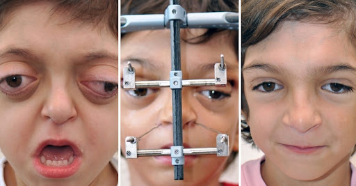 A rare syndrome disfigured his face at birth. After treatment, we see the beginning of his smile