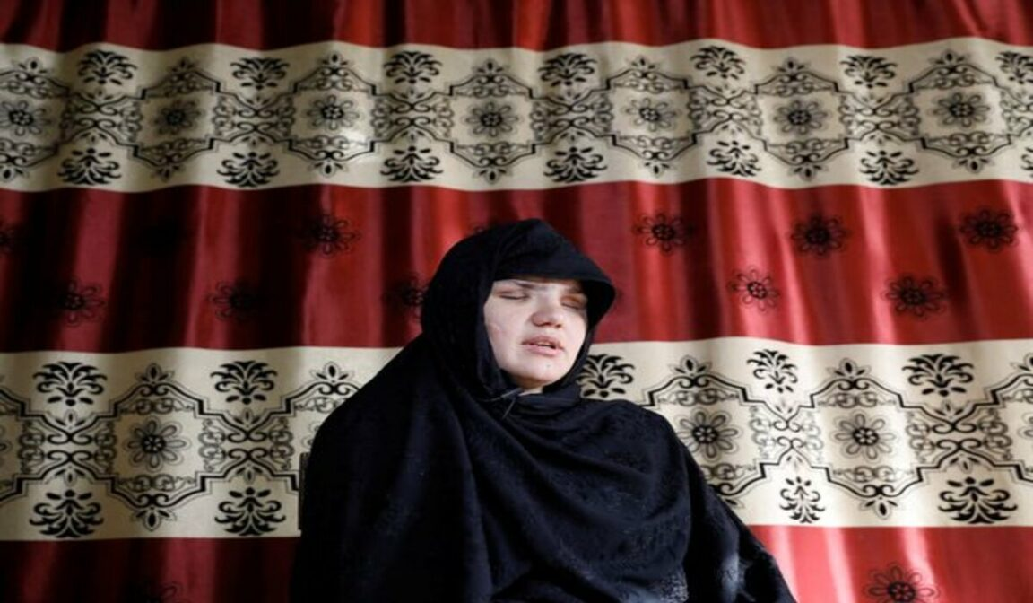 Mother whose eyes were gouged out by Taliban claims women are 'fed to dogs'