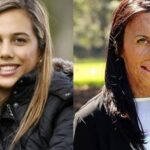 Turia Pitt, from surviving a fire to the cover of a magazine